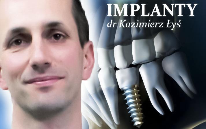 Implanty Korony Mosty porównanie