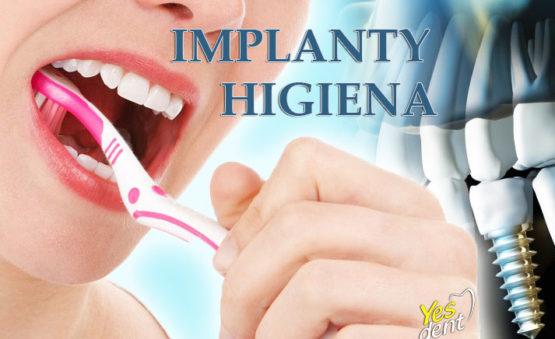 implanty higiena