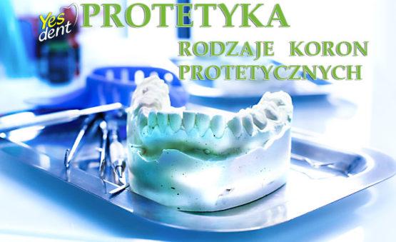 Protetyka Protetyk Wrocław