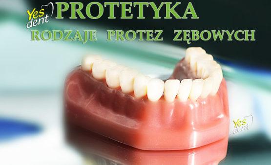 Protezy Zębowe Rodzaje