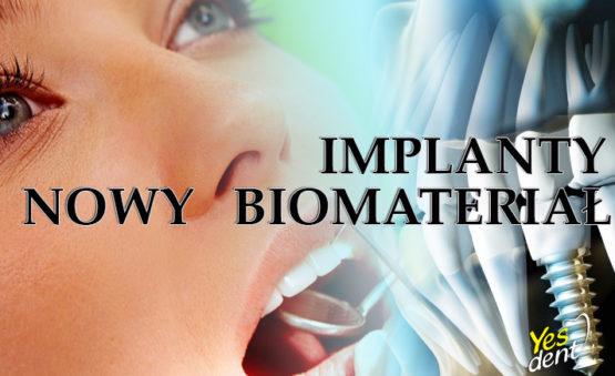 Implanty nowy biomateriał