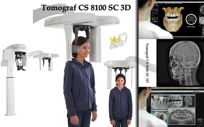 Tomograf Stomatologiczny Wrocław