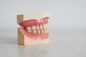 leczenie kanalowe odbudowa zeba 300x200 Odbudowa zęba po leczeniu kanałowym – 3 najskuteczniejsze metody