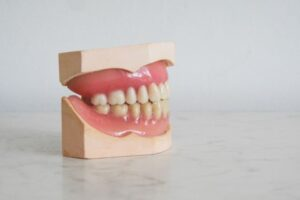 protetyczne zamienniki implantow 300x200 Co zamiast implantu? Poznaj możliwości na uzupełnienie brakującego zęba