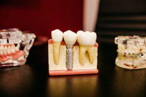 wszczepianie implantow zebowych czy boli 300x200 Czy wszczepienie implantów zębów jest bolesne? Poradnik dla pacjentów