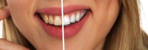 wybielanie zebow skuteczne metody 300x103 Bezpieczne wybielanie zębów u dentysty – która metoda będzie najskuteczniejsza?